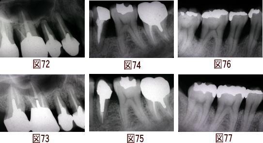 歯周病のレーザー治療の図