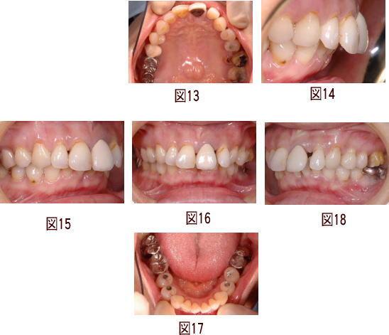 インプラント治療の症例の図